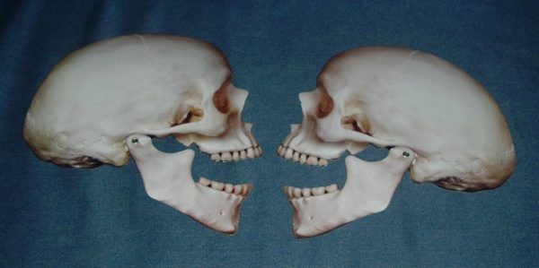 PAIR OF POSEABLE JOINTED SKULLS - LARGE