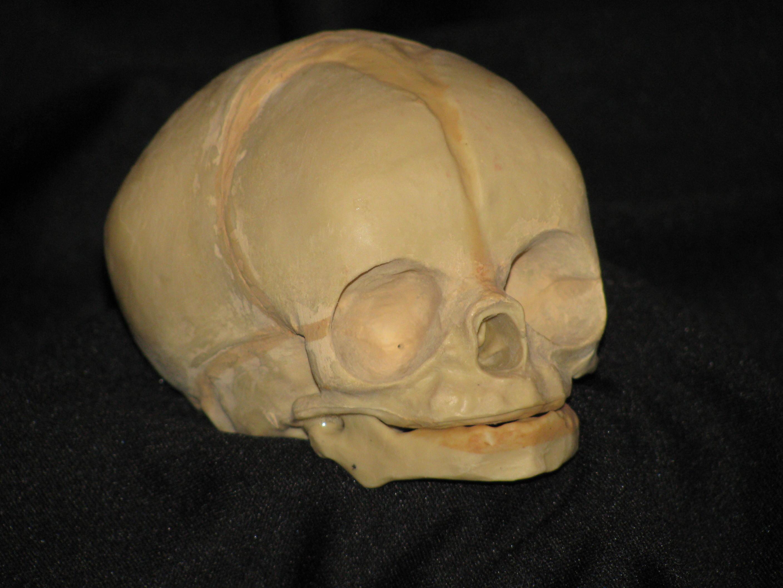 Fetal Skull 6 Ft Under